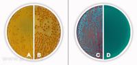 """A: <i>E. coli ATCC 25922 (žluté kolonie, s oranžovým centrem)<br>B: <i>Klebsiella</i> spp. (oranžové kolonie)<br>C: druhy nefermentující laktózu<br>D: """"non-induced"""" agar"""